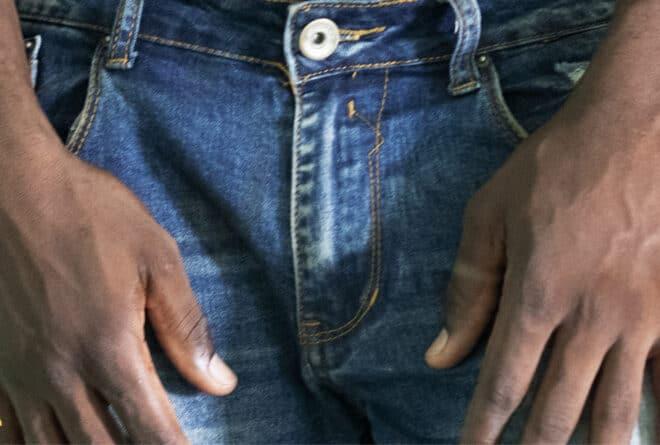 Sexualité : 3 accidents sexuels qui peuvent arriver aux hommes
