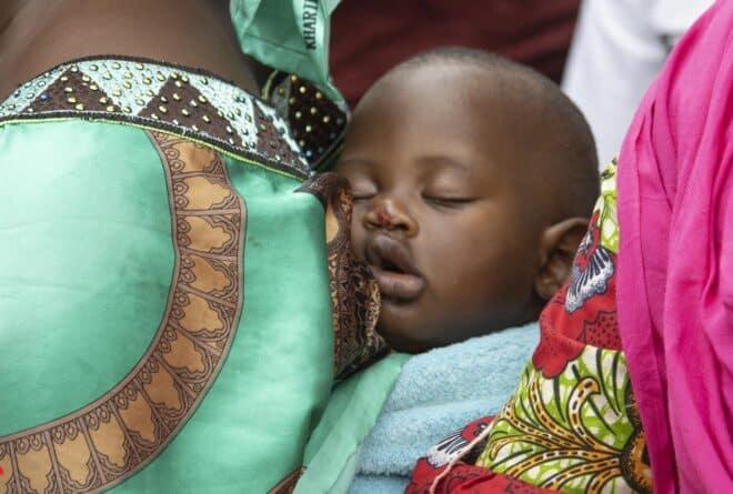 Lutte contre le paludisme : au Mali, les moins de 5 ans au cœur des préoccupations