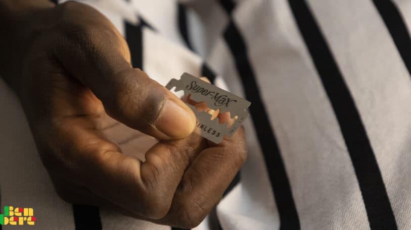Excision : une pratique nuisible à la santé sexuelle et reproductive